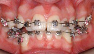 Фото: Выпирание зубов