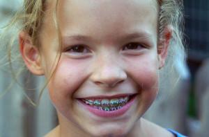 Съемные брекеты — конструкции для коррекции неправильного прикуса у детей