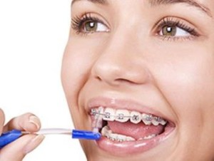 Фото: Как чистить зубы с брекетами?