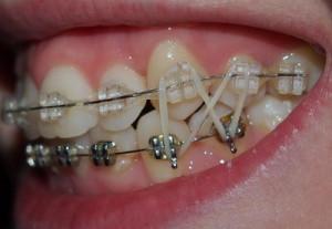 Резинки для брекетов — тяги для корректировки движения зубов