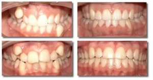 Фото: Лучший способ выровнять зубы