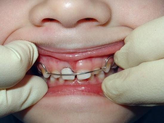 Пластинки на зубы спадают что делать