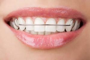 Фото: Коррекция зубов