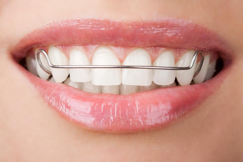Как сделать ровные зубы без брекетов