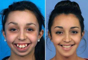 Фото: Девушки до и после брекетов