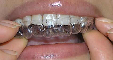 Отбелить зубы содой и углем
