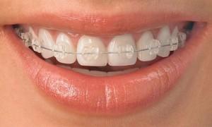 Металлокерамические брекеты— идеально-эстетическая улыбка