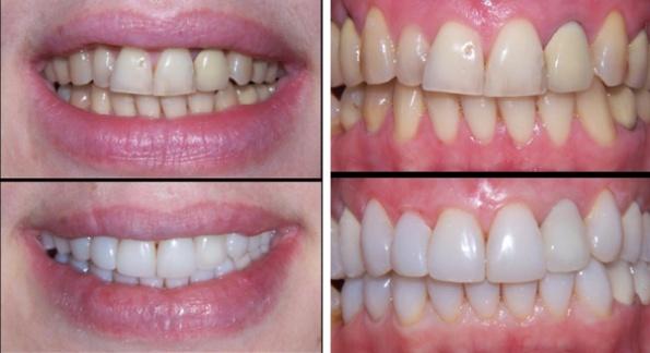 вредны ли виниры для зубов