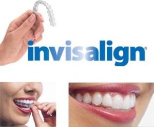 Инвизилайн — прозрачные эстетические элайнеры на зубах