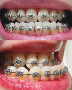Фото: Лечение зубов
