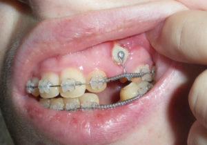 Фото: Зуб не прорезался до конца