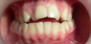 Фото: Искривление зубов