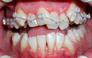 Фото: Процесс коррекции зубов