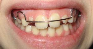 Фото: Зубные конструкции