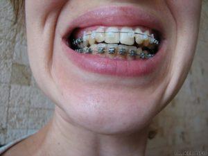 Фото: Умеренно искривленные зубы