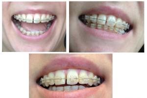Фото: Зубы после брекетов разъехались