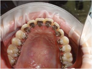 Брекеты Инкогнито — незаметные зубные конструкции