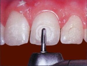 Клей для брекетов — быстро скрепляющий материал зубных конструкций
