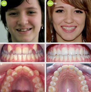 Фото: Клыки до и после
