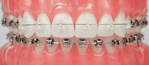 Комбинированные брекеты для решения ортодонтической проблемы