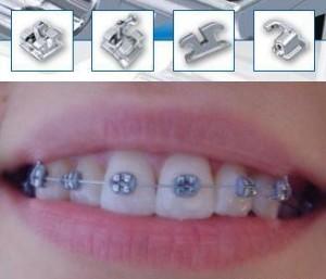 Мини-брекеты — эстетическое лечение зубов