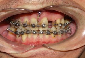 Фото: Отсутствие одного зуба