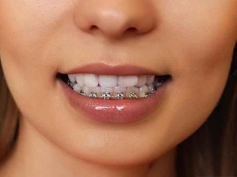 Какие зубы ставить на нижнюю челюсть