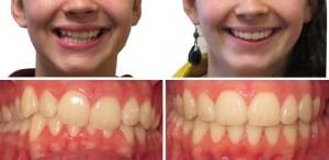 Фото: Брекеты до и после