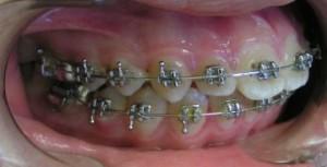 Фото: Особенности зубных систем
