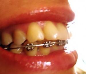 Фото: В брекетах шатаются зубы