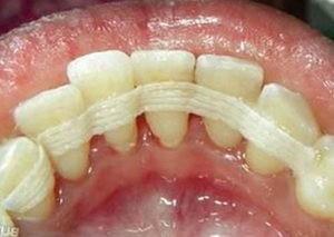 Фото: Шинирование зубов после брекетов