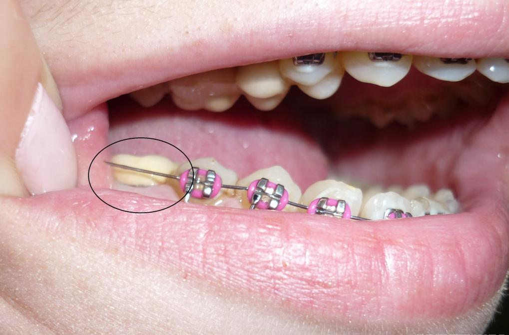 Можно ли устанавливать брекеты если нет зуба