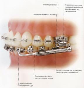 Фото: Зубная конструкция