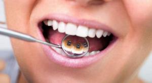 Фото: Лечение зубной системой