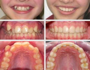 Фото: Выравнивание зубов
