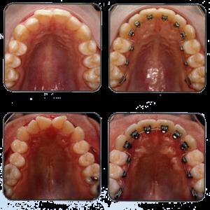 Фото: Лечение зубными системами