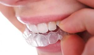Фото: Зубные каппы