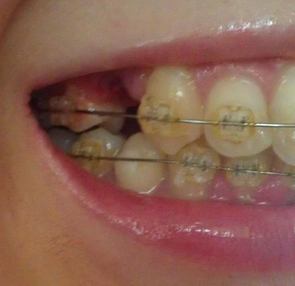 Какими уколами можно лечить зубы при беременности
