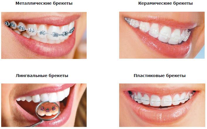 красивые протезы зубов