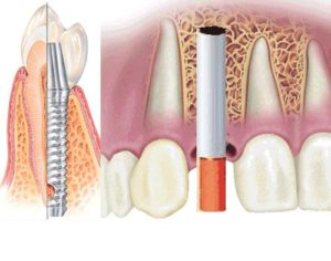 Фото: Совместимость курения с имплантацией