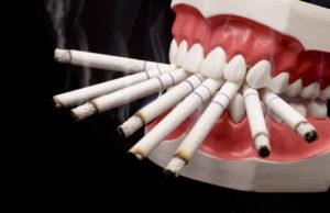 Фото: Сигареты и импланты