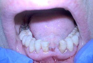 Фото: Отсутствие зуба