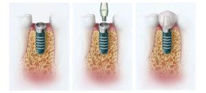 Фото: Одномоментная имплантация