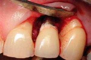 Фото: Отторжение импланта