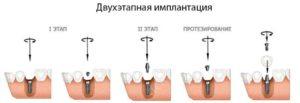 Фото: Двухэтапная имплантация