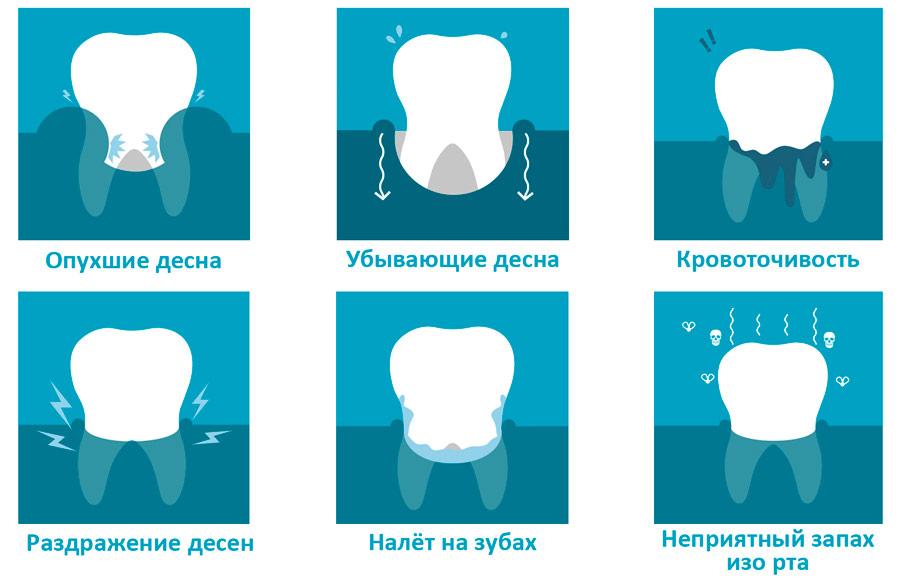 симптомы зубного камня