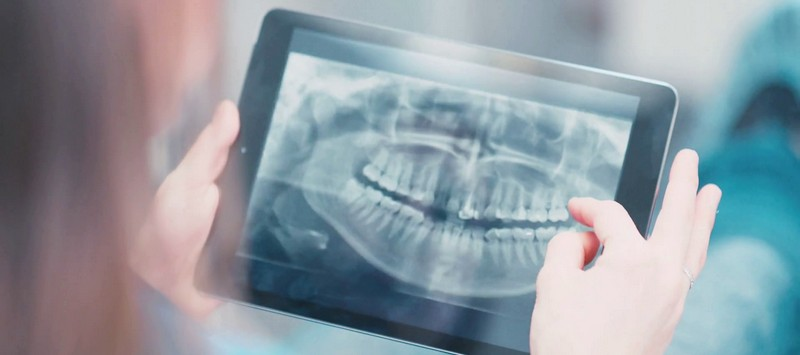 проведение рентгена сломанного зуба