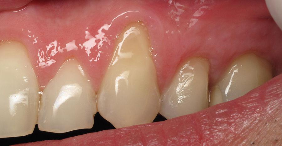 Десна отошла от зуба внешнее проявление