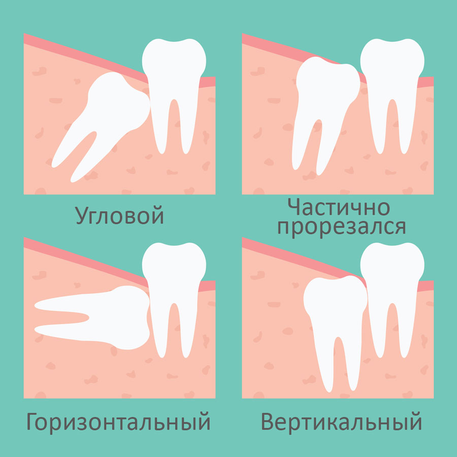 Расположение зубов мудрости