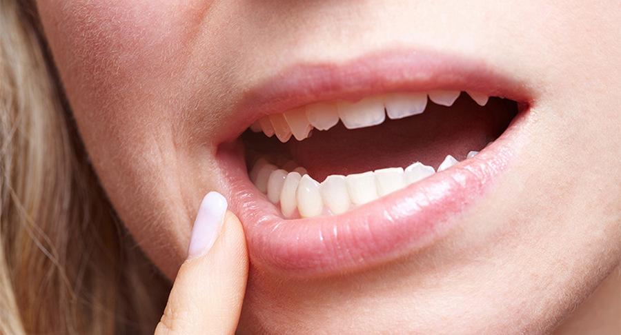 Причины обращения к стоматологу